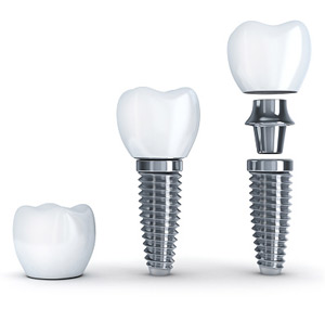 Dental Implants 01