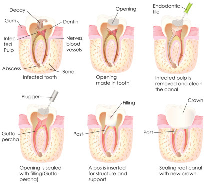 Best Root Canal Procedure treatments in San Francisco