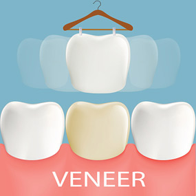 Best dental veneers and dental bonding treatments in San Francisco